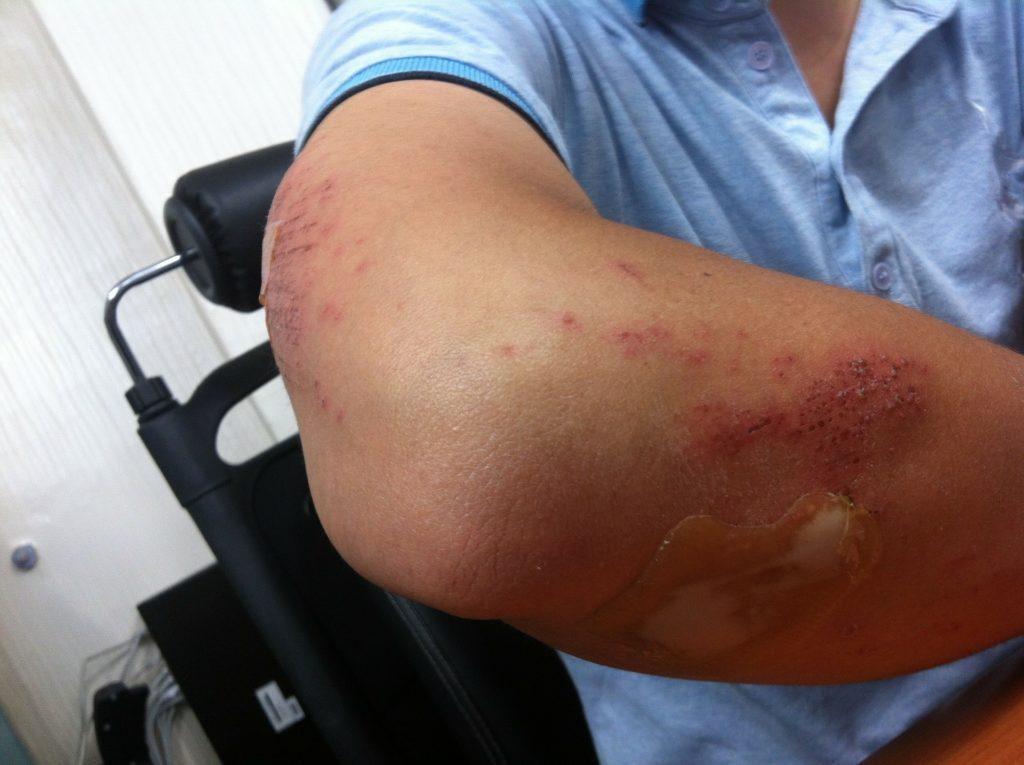 Treat cuts and bruises
